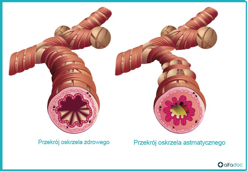 przekrój-oskrzela-astmatycznego